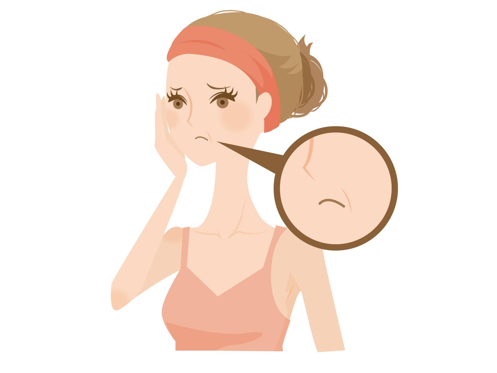 医薬部外品は表示(成分)隠しだ! 美白化粧品でシミが増える理由