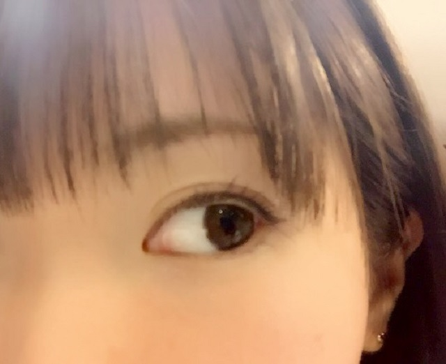 レーシック手術で失明。その原因は感染