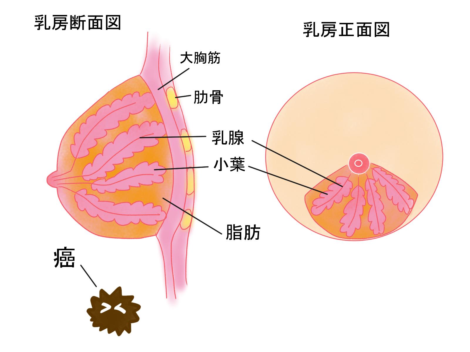 北斗晶さんはマンモグラフィ検診で乳癌に??