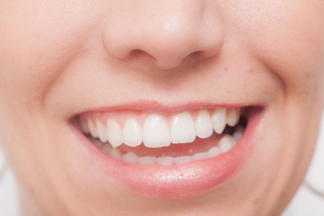 セラミック矯正(クイック矯正)で出っ歯の前歯2本を抜歯って酷すぎ