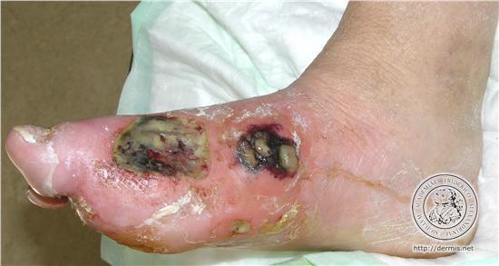 糖尿病による足の切断は年間1万人