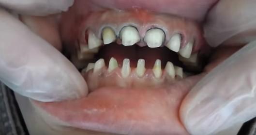 セラミック矯正(クイック矯正)の罪。無残な歯の写真を見てよ
