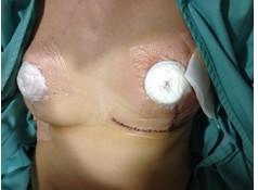乳がん体験記 佐藤さん編⑨乳がんの乳房再建手術後の乳房と対面