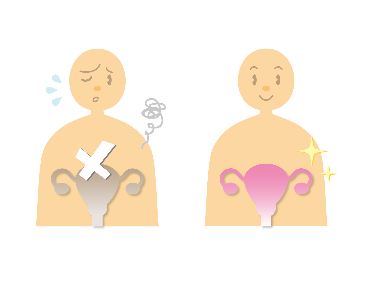 子宮筋腫で痛みが出る理由を産婦人科医に聞いた(腰痛以外)