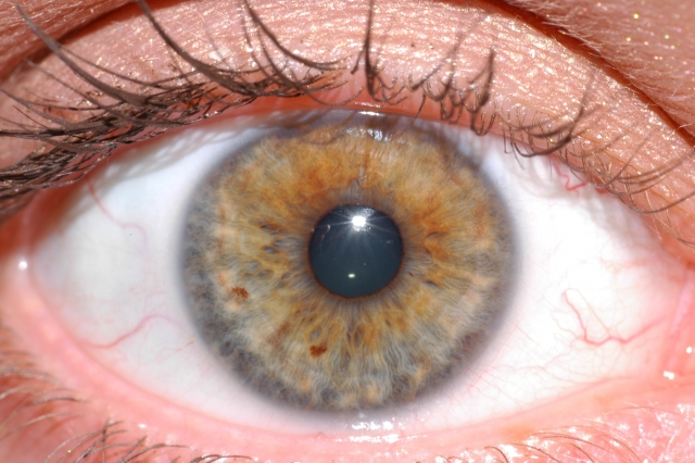 エビリファイ(鬱の薬)の副作用で眼球が勝手に動いてしまう(眼球上転)