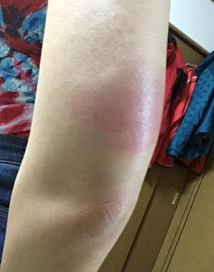 インフルエンザワクチンで大きく腫れ、痛みと痒みは5日続く(写真あり)