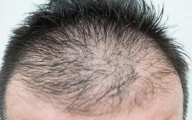 薄毛の原因は糖質なの?髪の毛を守る食事法とは